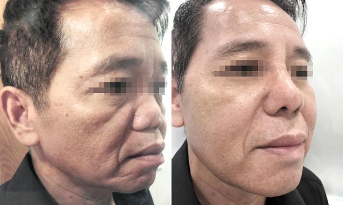TS.BS Nguyễn Phan Tú Dung – Người cứu chữa thành công hàng nghìn ca mũi hỏng- hình 8