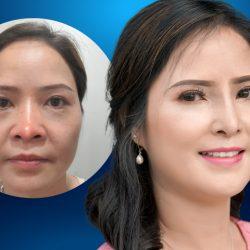 Cô gái Hà Lan vượt vạn dặm đến Việt Nam cứu chữa chiếc mũi 10 năm biến dạng