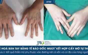 """Từ bàn tay bà lão U70 thành """"bàn tay thiếu nữ"""" nhờ Tiêm tế bào gốc Multi ᐩ"""