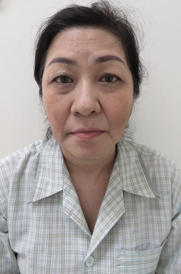 https://thammyhanquoc.vn/ca-si-dong-quan-vo-oa-truoc-nu-cuoi-tuoi-tre-cua-nguoi-phu-nu-u50-1
