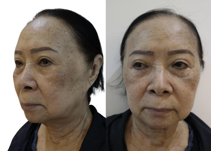 Ca sĩ Đông Quân phát cuồng với làn da đẹp của người phụ nữ U75 sau trị nám - hình 2