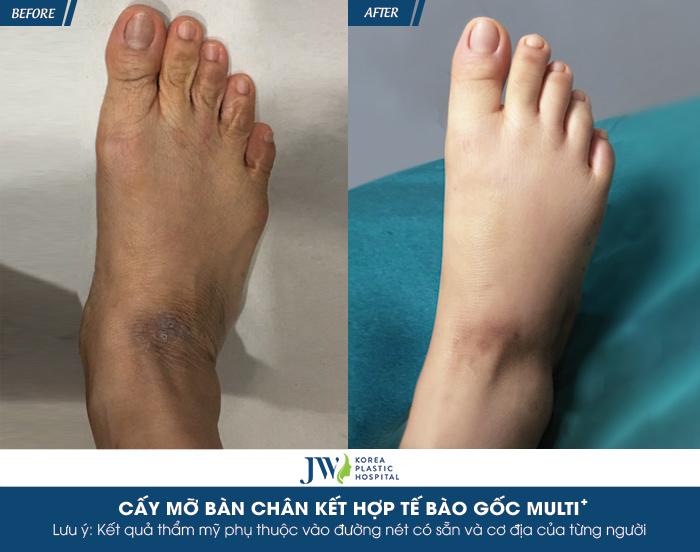 Cấy mỡ bàn chân kết hợp tế bào gốc MULTI+ - Bí quyết trẻ hóa chỉ trong 60 phút- hình 6