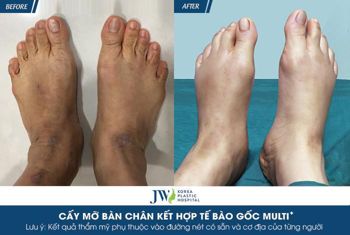Cấy mỡ bàn chân kết hợp tế bào gốc MULTI+ - Bí quyết trẻ hóa chỉ trong 60 phút- hình 7