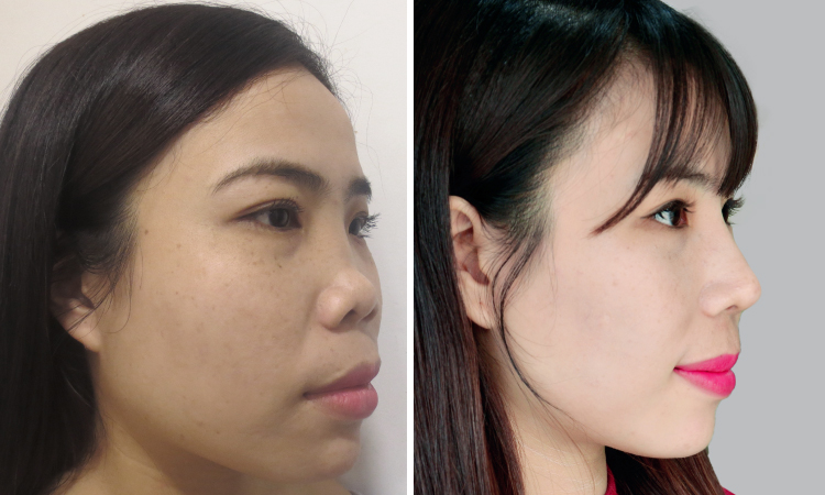 TS.BS Nguyễn Phan Tú Dung giảng dạy chuyên đề mũi cho hơn 500 bác sĩ tại Bệnh viện Tai Mũi Họng TP.HCM -4