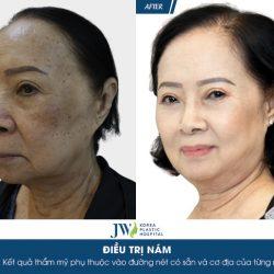 Ca sĩ Đông Quân phát cuồng với làn da đẹp của người phụ nữ U75 sau trị nám
