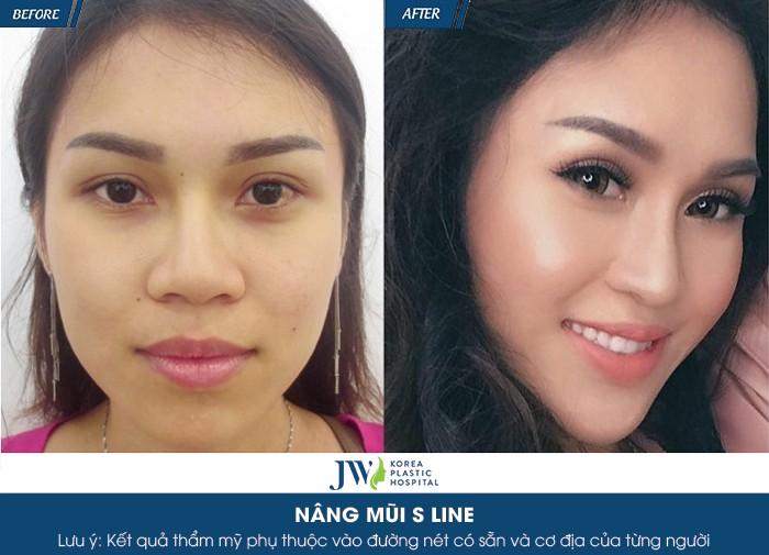 nâng mũi tự nhiên không cần phẫu thuật