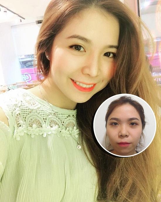 Hot girl Đại học Hồng Bàng thay đổi diện mạo sau nâng mũi
