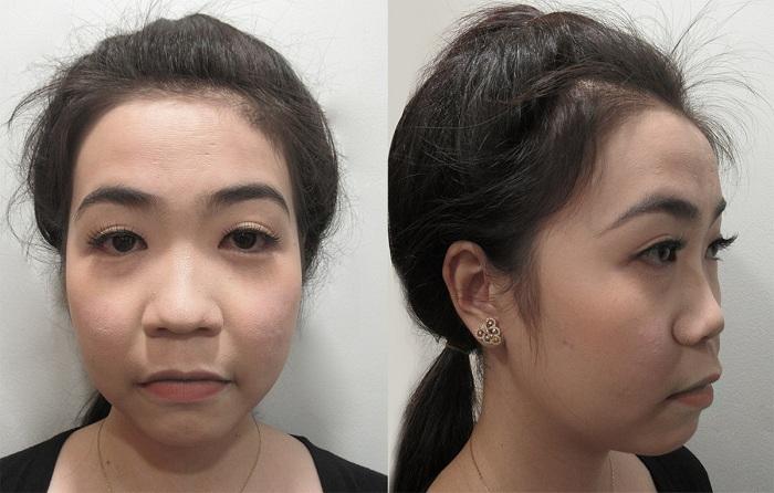 """Diễn viên Hà Trí Quang """"phát cuồng"""" với nhan sắc của """"Người đẹp Tây Đô"""" sau nâng mũi - 2"""