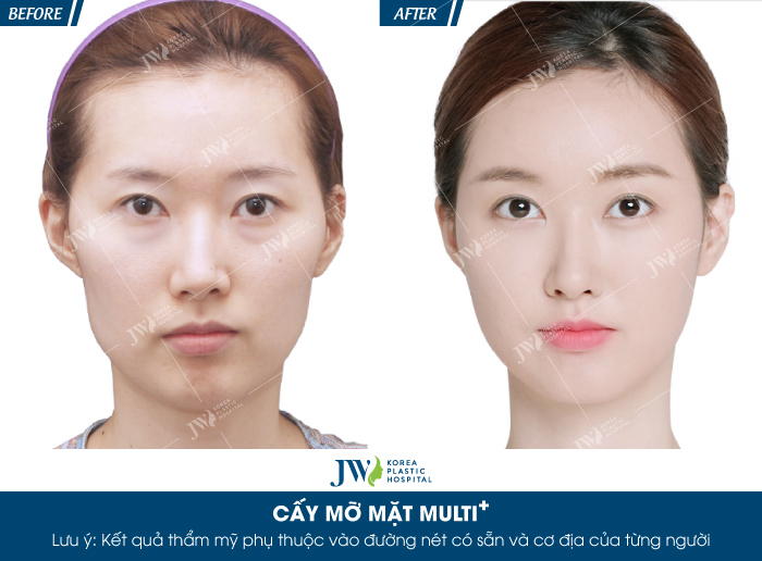 cay-mo-mat-multi-bi-quyet-cho-ve-dep-khong-tuoi-9