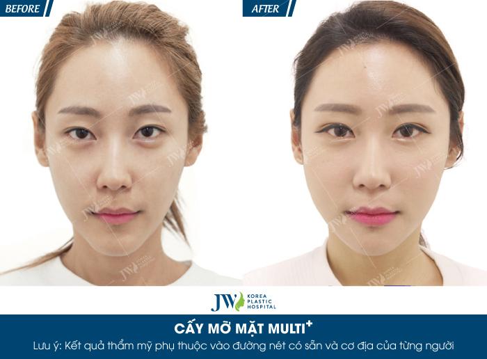 cay-mo-mat-multi-bi-quyet-cho-ve-dep-khong-tuoi-8