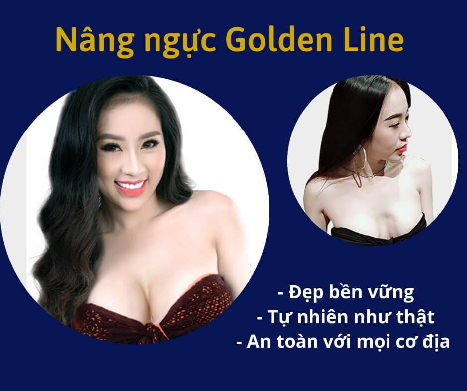 Nâng ngực Golden Line có an toàn không và những nguyên tắc