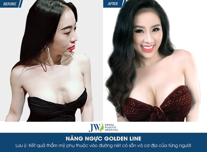 nang-nguc-golden-line-co-an-toan-khong-nguyen-tac-quan-trong-dung-bo-lo-10