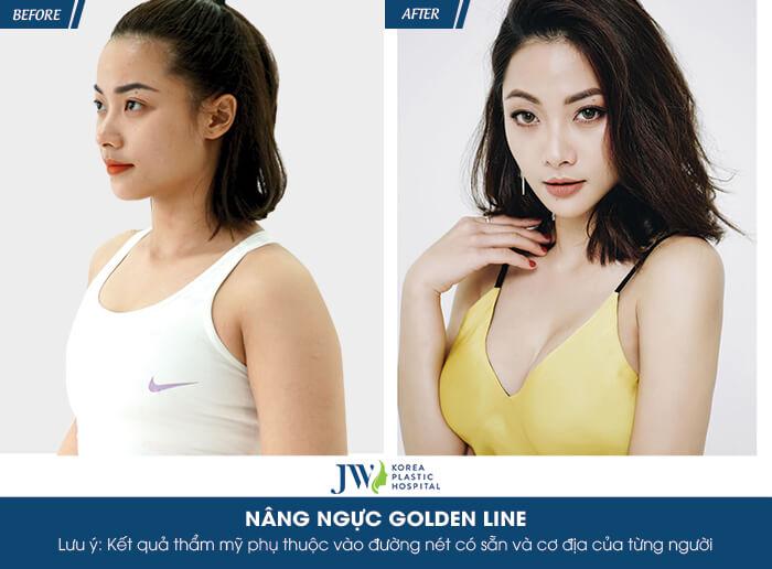 nang-nguc-golden-line-co-an-toan-khong-nguyen-tac-quan-trong-dung-bo-lo-9