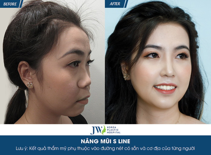 """Diễn viên Hà Trí Quang """"phát cuồng"""" với nhan sắc của """"Người đẹp Tây Đô"""" sau nâng mũi-5"""