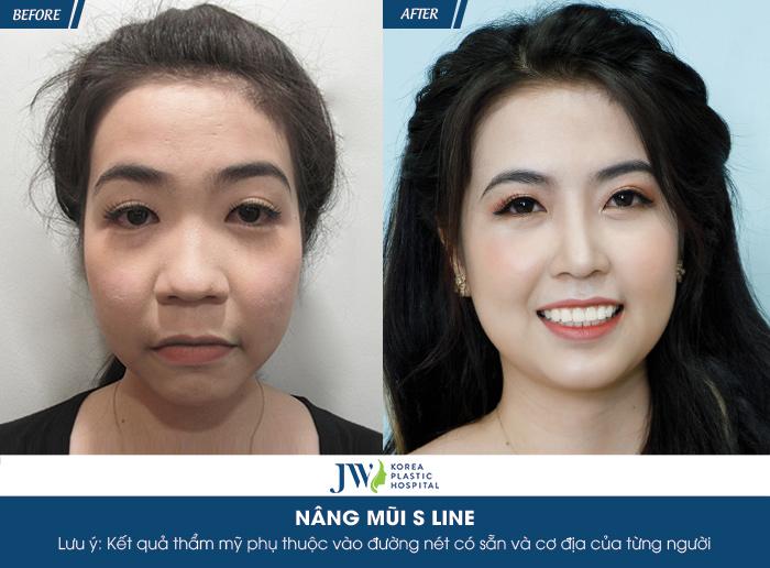 """Diễn viên Hà Trí Quang """"phát cuồng"""" với nhan sắc của """"Người đẹp Tây Đô"""" sau nâng mũi - 6"""