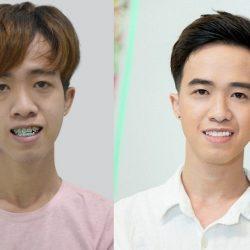 Chàng trai Hậu Giang 'lột xác' dù không phẫu thuật thẩm mỹ