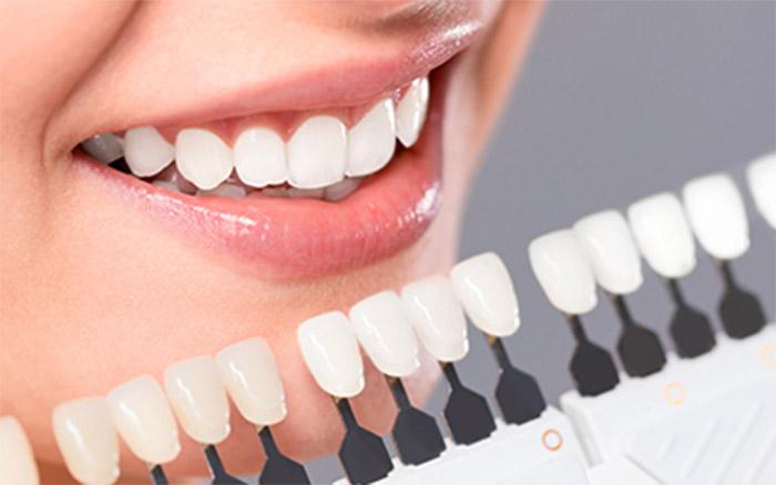 răng sứ lisi