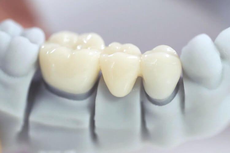 Bọc răng sứ – Giải pháp giản đơn cho nụ cười xinh xắn