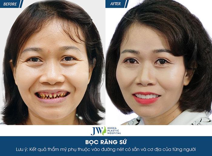 hình ảnh bọc răng sứ toàn phần