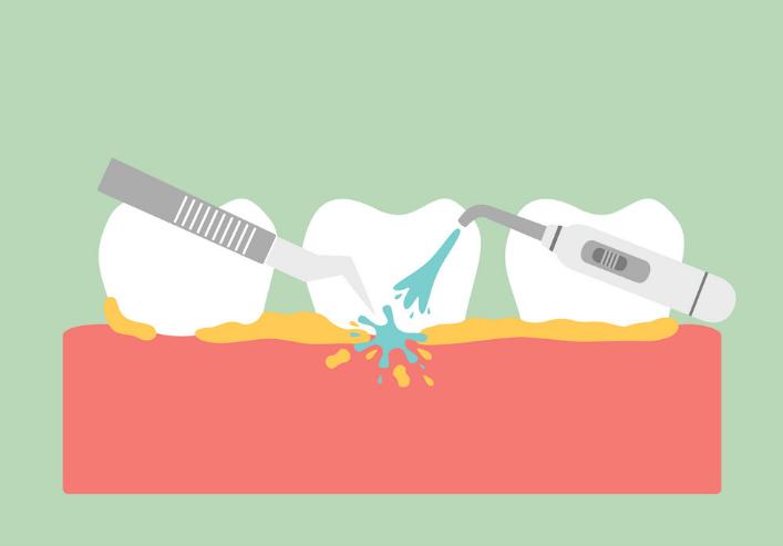 cạo vôi răng loại bỏ mảng bám chuẩn 5 sao