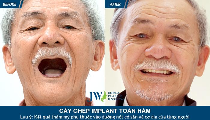 Khách hàng cắm implant