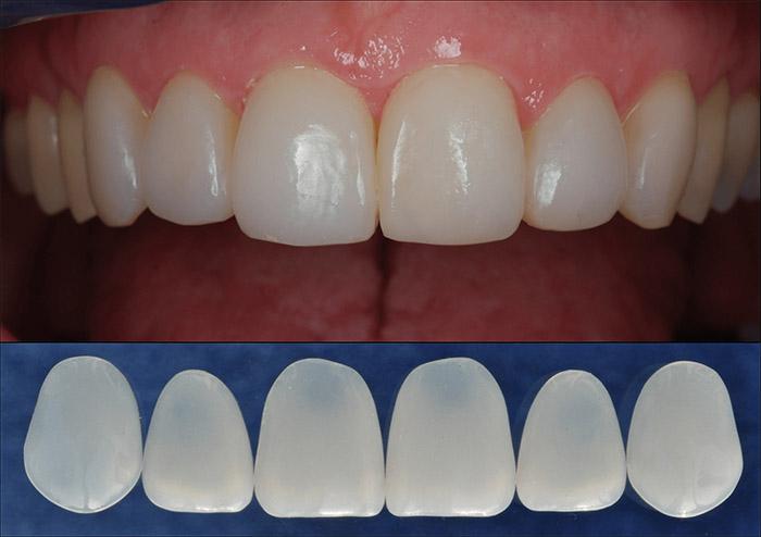 Dán Sứ Veneer đẹp bảo vệ răng