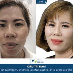 """Người phụ nữ An Giang được """"tái sinh"""" sau liệu trình trị nám do dùng kem trộn"""
