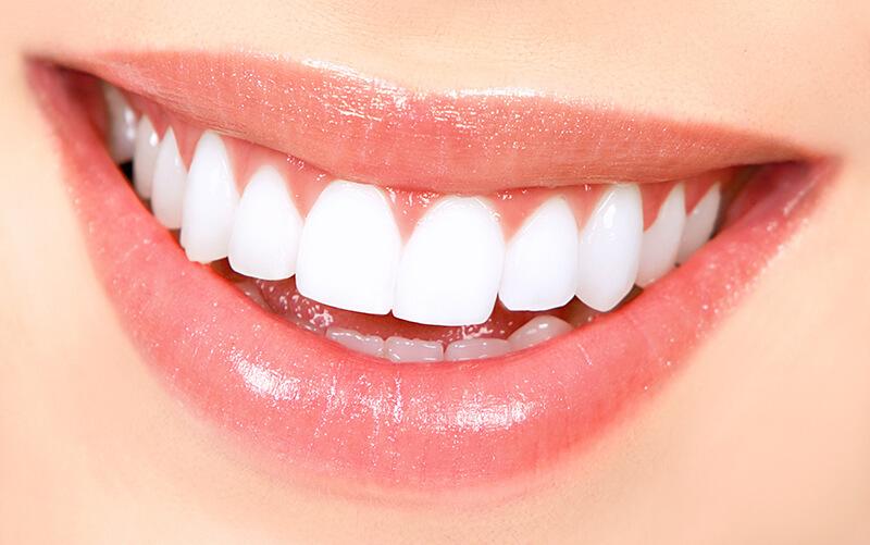 tẩy trắng răng led bleaching