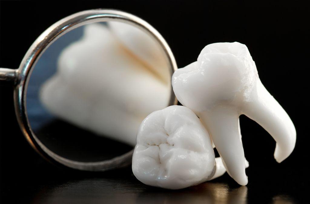 nhổ răng khôn khám và điều trị