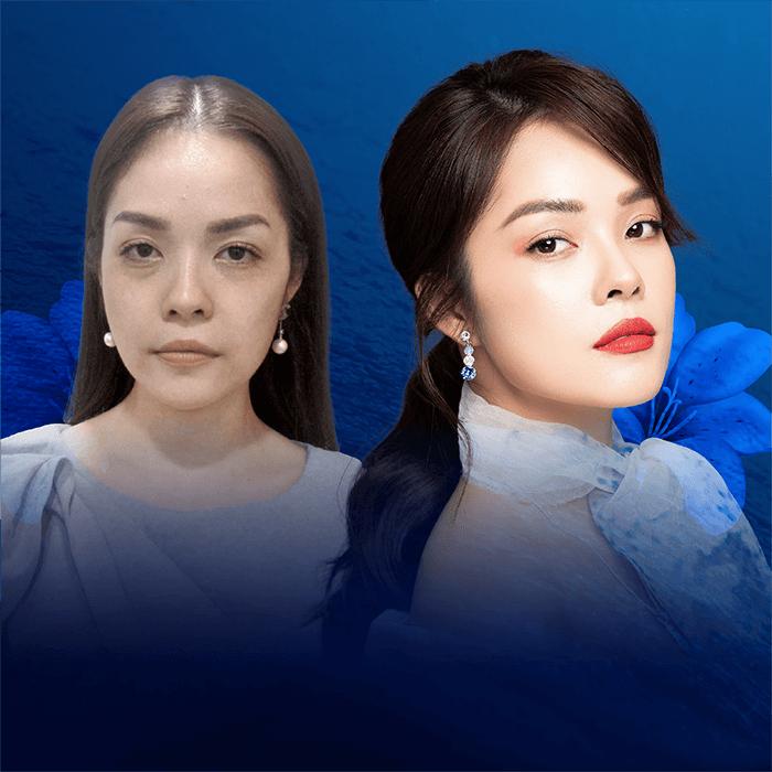 Kết quả trước và sau khi diễn viên Dương Cẩm Lynh trẻ hóa da mặt tại JW Hàn Quốc