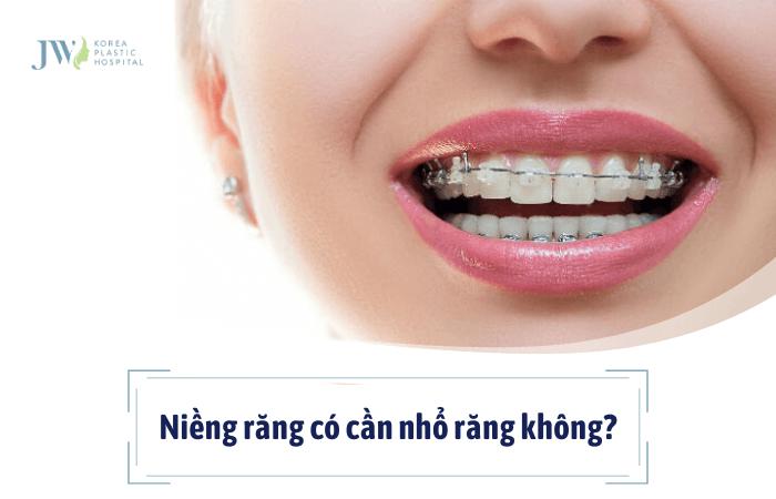 niềng răng có cần nhổ răng không vậy bác sĩ