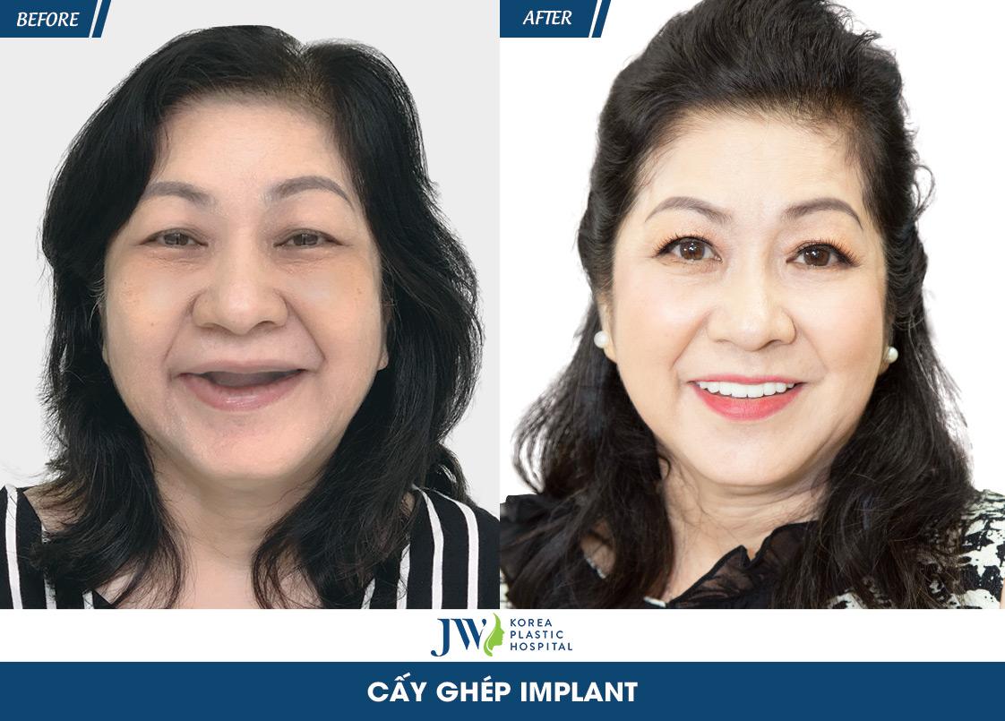 hình trước và sau cô Hiểu