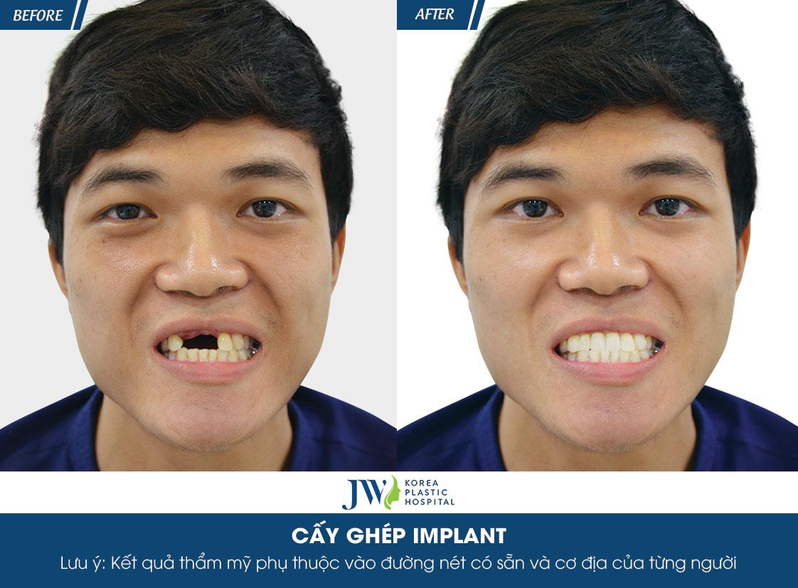hình trước và sau của anh Vũ Minh