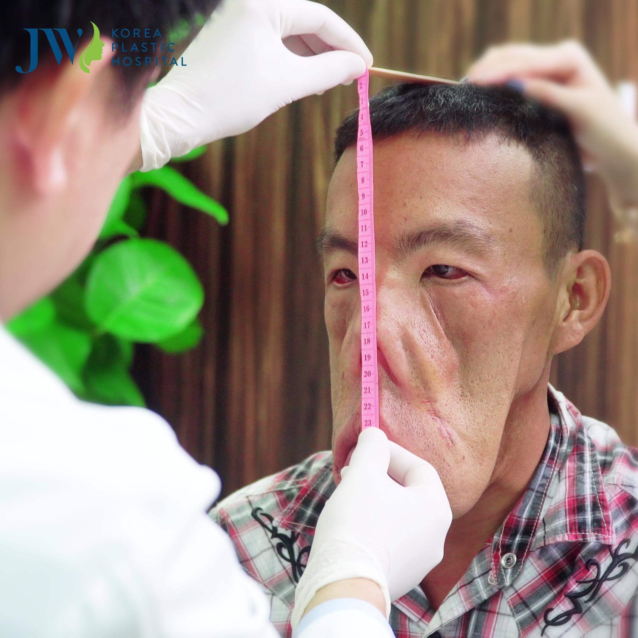 Cận cảnh anh Mến được bác sĩ Tú Dung đo lại gương mặt
