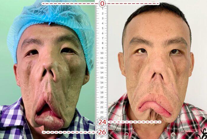 Gương mặt anh Mến được thu gọn 2cm sau khi phẫu thuật sinh thiết