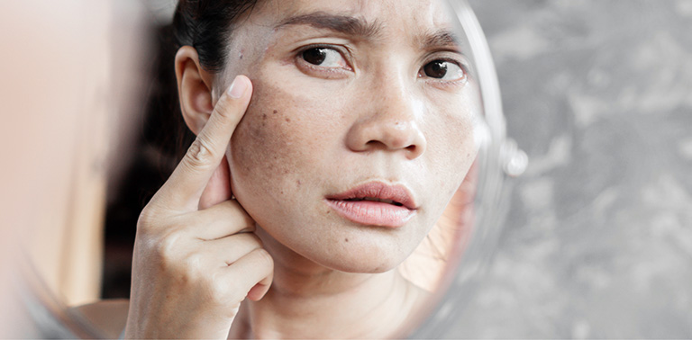 cách trị đồi mồi trên da mặt