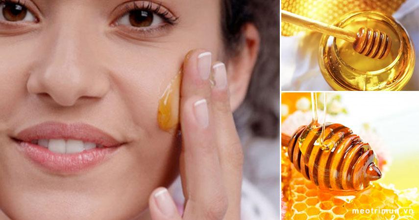 cách trị mụn thịt bằng mật ong