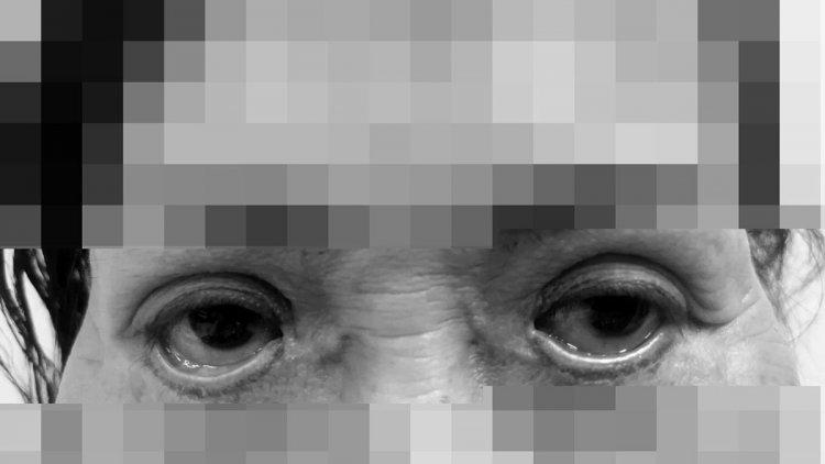 thẩm mỹ mắt, cắt mí mắt, biến chứng thẩm mỹ, tái phẫu thuật mắt