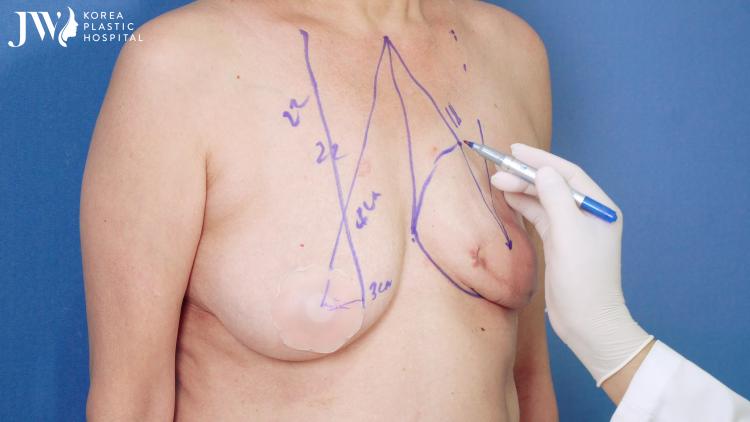 Bác sĩ Tú Dung phân tích tình trạng bệnh nhân trước khi mổ