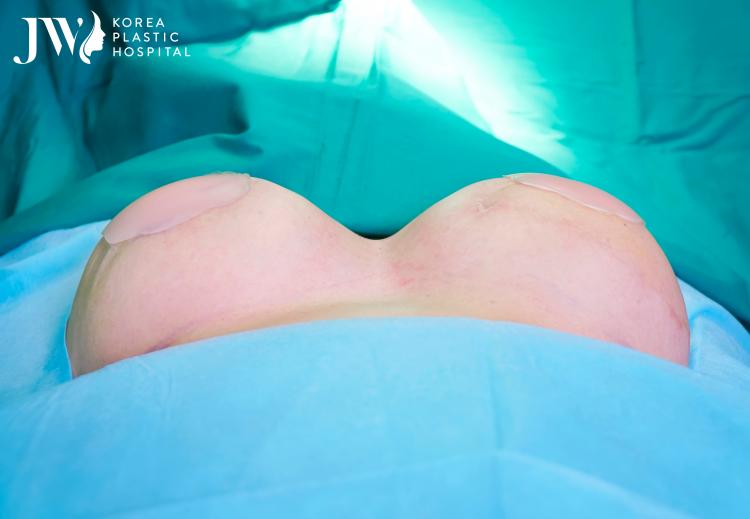 Tái tạo ngực cho bệnh nhân ung thư vú là liệu pháp tâm lý hữu hiệu
