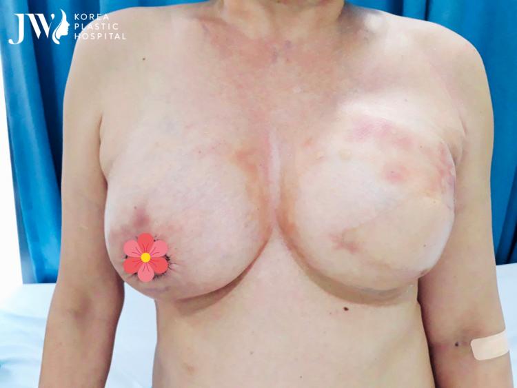 Sau khi hồi phục, bệnh nhân sẽ được tái tạo đầu vú để đạt độ thẩm mỹ tối đa