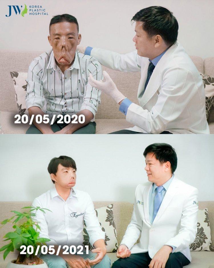 Anh mến phẫu thuật tại thẫm mỹ jw Hàn Quốc
