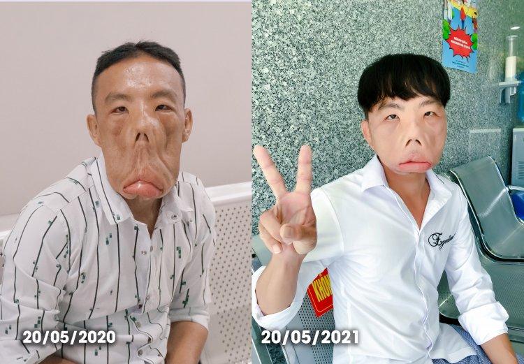 Sự thay đổi đáng kể của anh Mến sau 1 năm điều trị