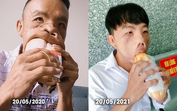 Sự thay đổi lớn về diện mạo sau ca phẫu thuật thứ 3 của anh Mến