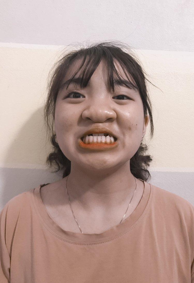 Thương Huyền niềng răng