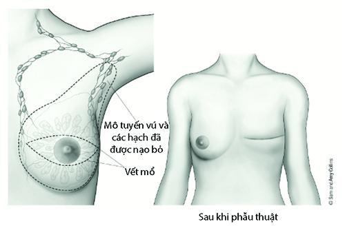 ung thư vú, tái tạo ngực