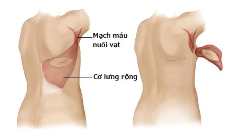 phương pháp tái tạo ngực