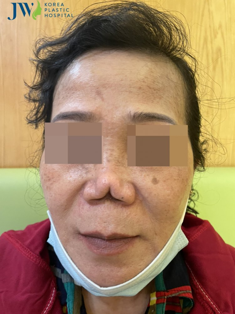mũi cắt xẻ 3 ngả
