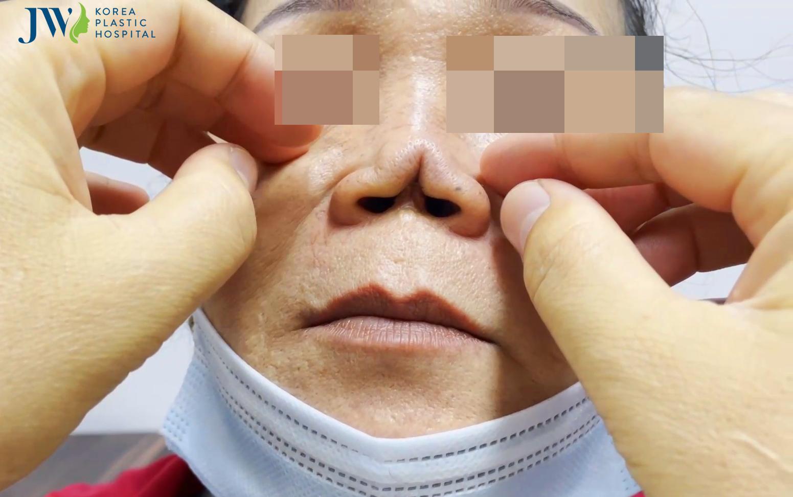 mũi không đầu dị dạng
