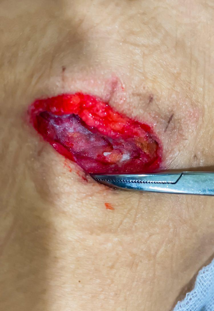 mông bị thủng vì tiêm filler ở spa